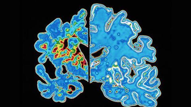 Cerebro con placas de alzhéimer