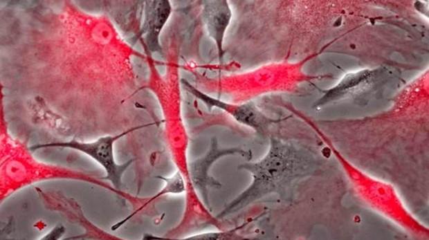 Células cardiacas