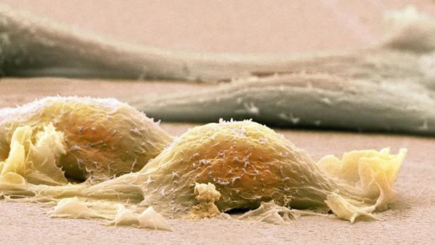 Una de las principales señales de alarma del sarcoma es la aparición de un bulto o dolor en las extremidades
