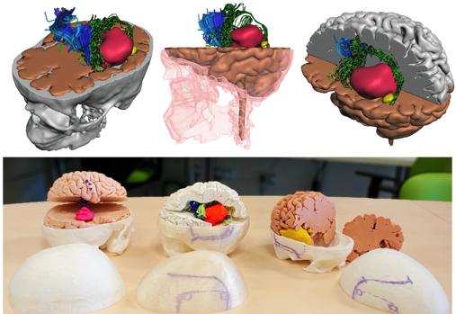 El coste de estos modelos no supera los 30 euros y la tecnología utilizada para esta impresión en 3D procede del Instituto de Biomedicina de Sevilla